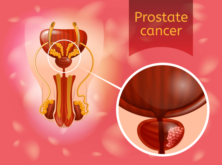 What are the Symptoms and treatments of Prostate Cancer?
